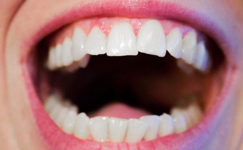Aktualna technologia wykorzystywana w salonach stomatologii estetycznej być może spowodować, że odzyskamy prześliczny uśmieszek.